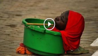رحمة هارونا، فتاة نيجيرية أمضت كل حياتها في وعاء بلاستيكي بسبب إصابتها بمرض نادر