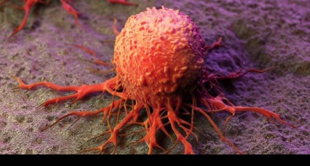Cancer: des chercheurs belges découvrent l'origine des métastases