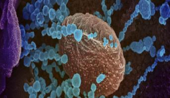 La pandémie du coronavirus en chiffres