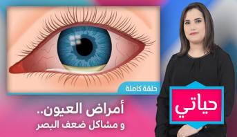 حياتي > أمراض العيون و مشاكل ضعف البصر