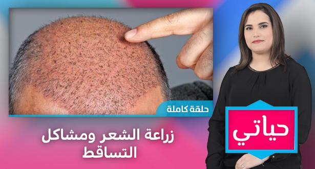 حياتي > حياتي .. زراعة الشعر ومشاكل التساقط