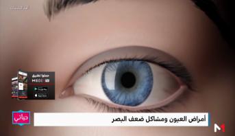أهم اللحظات > روبورتاج .. أمراض العيون ومشاكل ضعف البصر