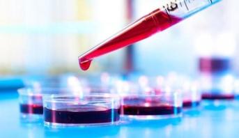 دم صناعي يمكن نقله مهما كانت فصيلة دم المريض
