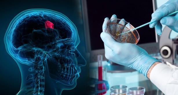 علماء روس يختبرون طريقة جديدة لعلاج سرطان الدماغ