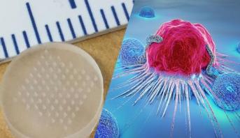 تكنولوجيا جديدة تحسن بشكل كبير فعالية أدوية السرطان