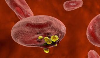 العلماء يكتشفون طريقة جديدة لتشخيص السرطان