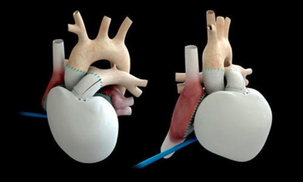 أول عملية زرع قلب اصطناعي بالكامل في الدنمارك
