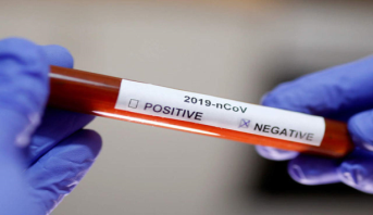 Coronavirus: les cas de guérisons dans le monde en chiffres