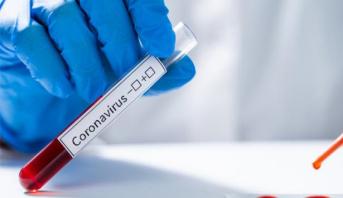 Covid19: Pas de foyer de contamination à Fès (DRS)