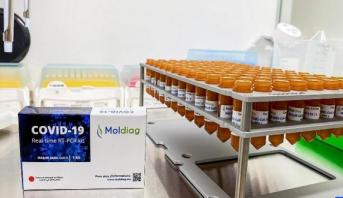 الشروع في إنتاج أول طقم تشخيص لفيروس كوفيد-19 مغربي مائة في المائة