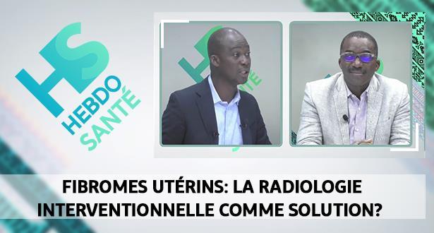 Fibromes utérins: la radiologie interventionnelle comme solution?