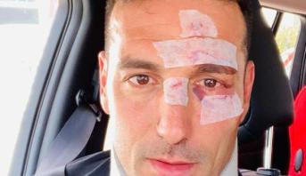 إصابة مدرب المنتخب الأرجنتيني بعدما دهسته سيارة في مايوركا
