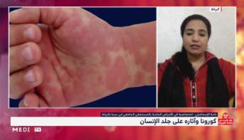 ظهور أعراض على جلد المصاب بفيروس كورونا .. توضحيات اختصاصية في الأمراض الجلدية