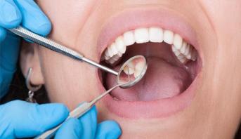أي علاقة لصحة الفم بالإدراك المعرفي والذاكرة؟