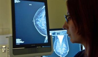باحثون يطورون عقارا لعلاج أكثر سرطانات الثدي فتكا