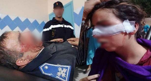 """La police réagit aux images de """"Tcharmil"""" qui circulent sur la toile et présente les résultats des expertises"""
