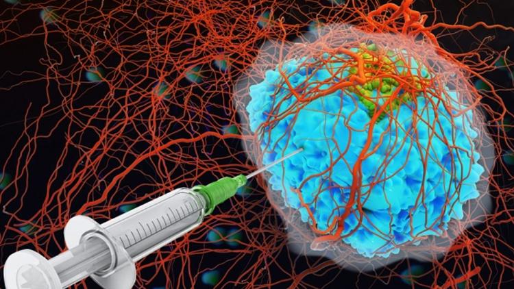 باحثون صينيون يطورون جسيمات نانوية ذكية تستهدف الأورام