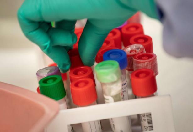 Coronavirus: plus de 10.000 nouvelles contaminations recensées en Russie en 24h
