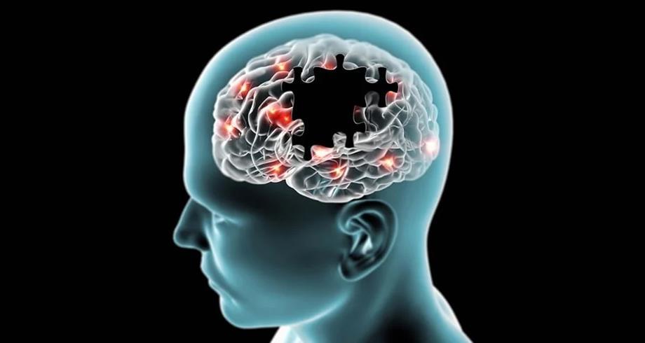 دراسة تكشف تقنية علاجية جديدة لإزالة البروتين المسبب لمرض الزهايمر من الدماغ