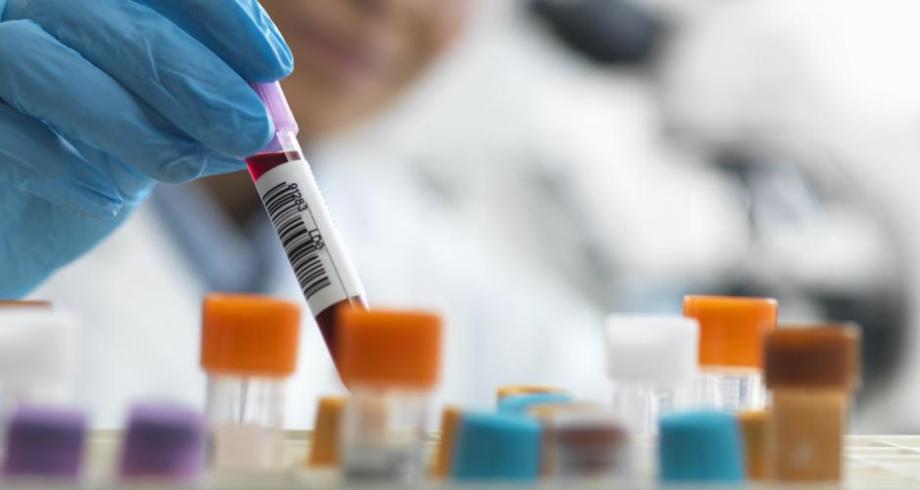 البرازيل تبدأ تصنيع لقاحها الخاص ضد كوفيد-19