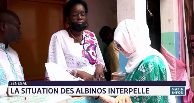 Sénégal: la situation des albinos interpelle