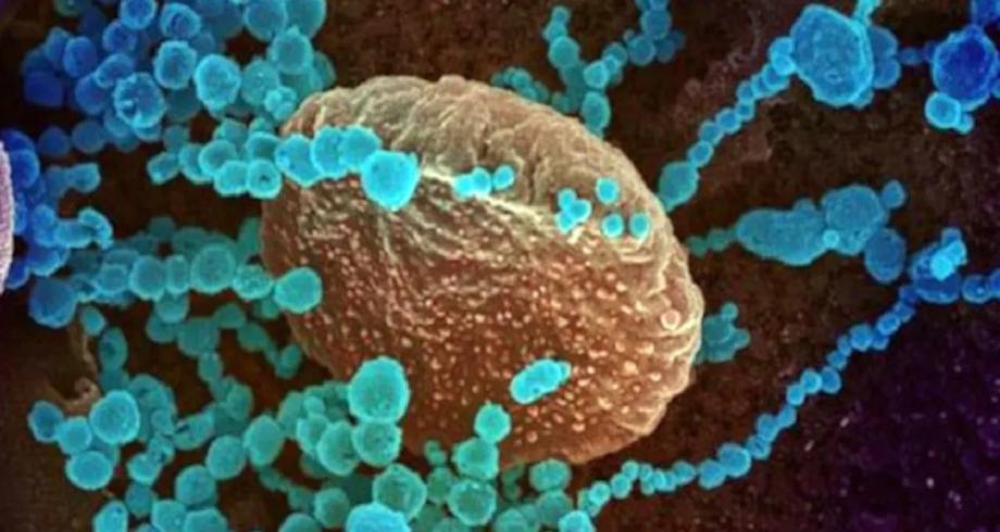 المتحورة دلتا قد تتسبب في زيادة كبيرة في عدد حالات كوفيد خلال الصيف
