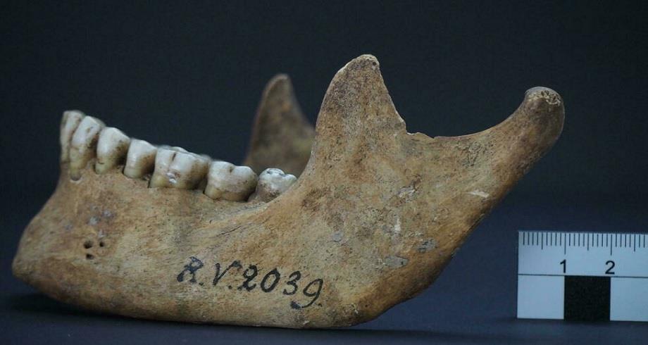 Découverte de la première victime connue de la peste il y a 5.000 ans