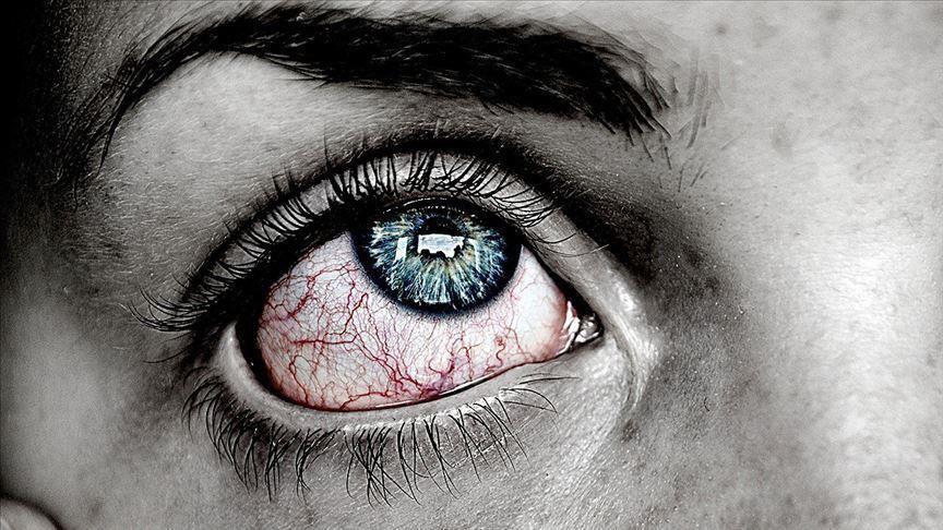 كوفيد19: كيف يؤثر الفيروس على صحة العين؟