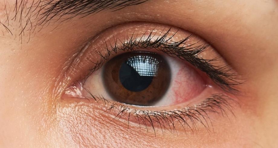 نتائج مشجعة لعلاج جديد لأكثر أشكال سرطان العين شيوعاً