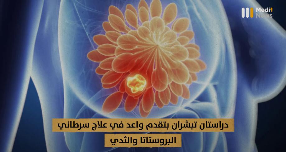 دراستان تبشران بتقدم واعد في علاج سرطاني البروستاتا والثدي