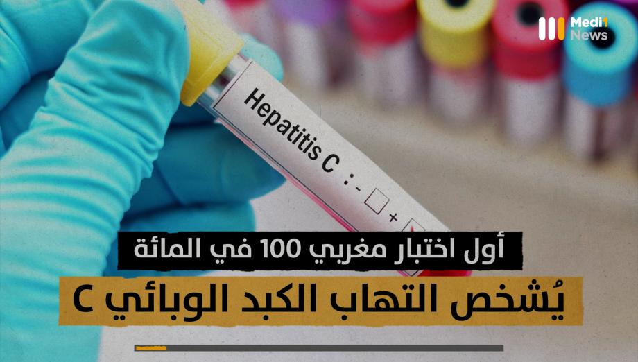 أول اختبار مغربي لتشخيص التهاب الكبد الوبائي C