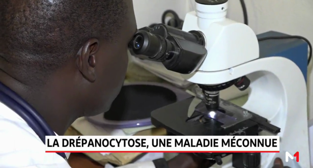 Sénégal: Zoom sur la drépanocytose, une maladie génétique rare