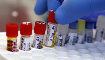 ارتفاع عدد الإصابات بفيروس زيكا في ألمانيا إلى 20 إصابة
